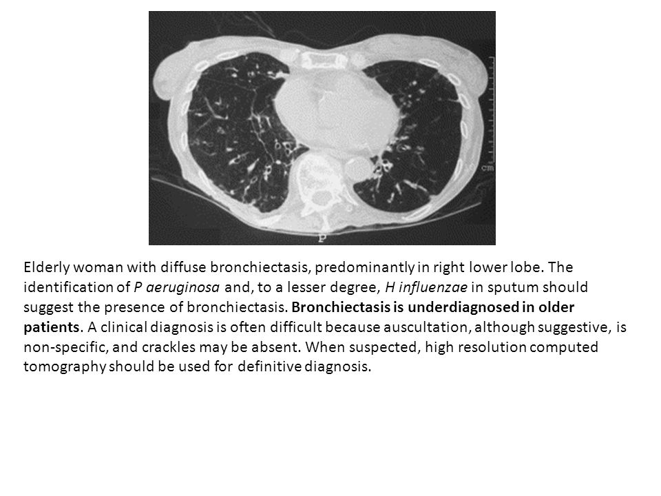 Elderly woman with diffuse bronchiectasis, predominantly in right lower lobe.