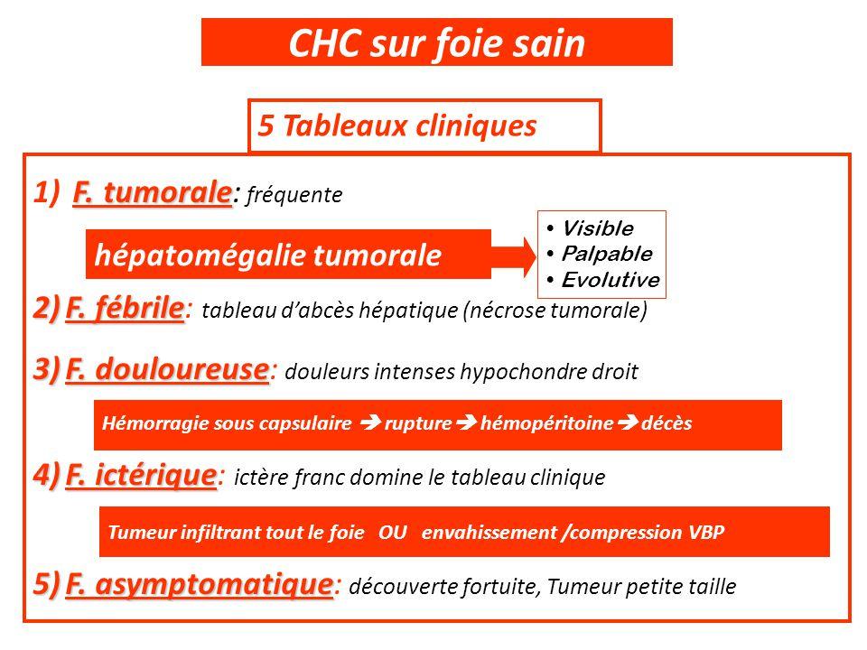 CHC sur foie sain 5 Tableaux cliniques F. tumorale: fréquente