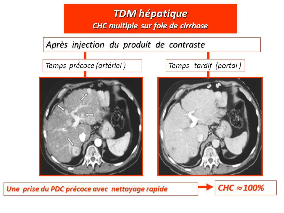 TDM hépatique CHC multiple sur foie de cirrhose