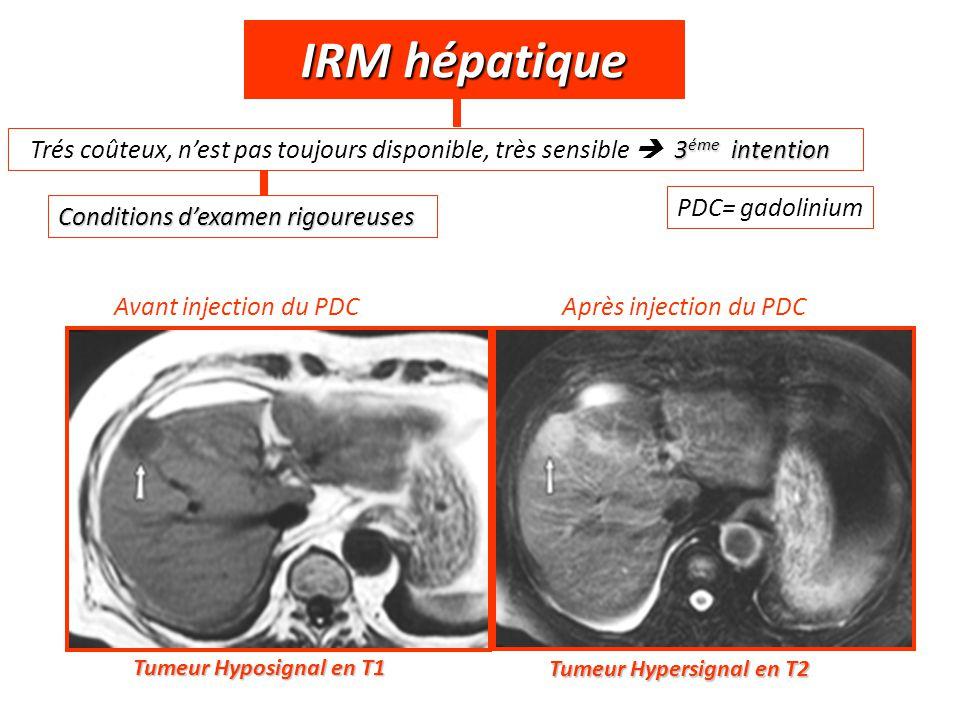 IRM hépatique Trés coûteux, n'est pas toujours disponible, très sensible  3éme intention. PDC= gadolinium.