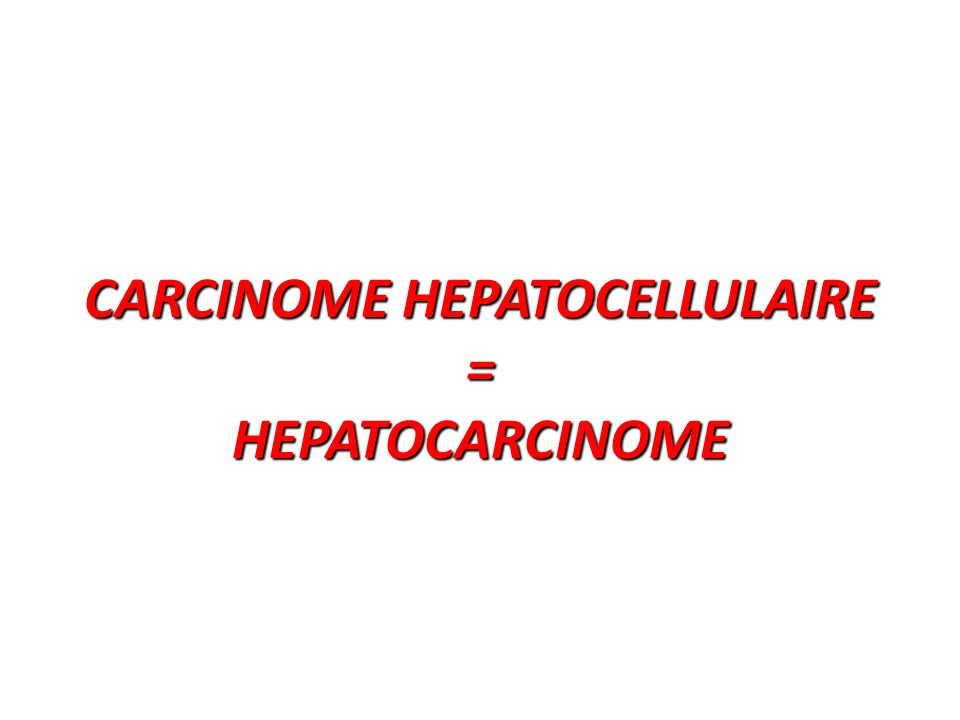 CARCINOME HEPATOCELLULAIRE = HEPATOCARCINOME