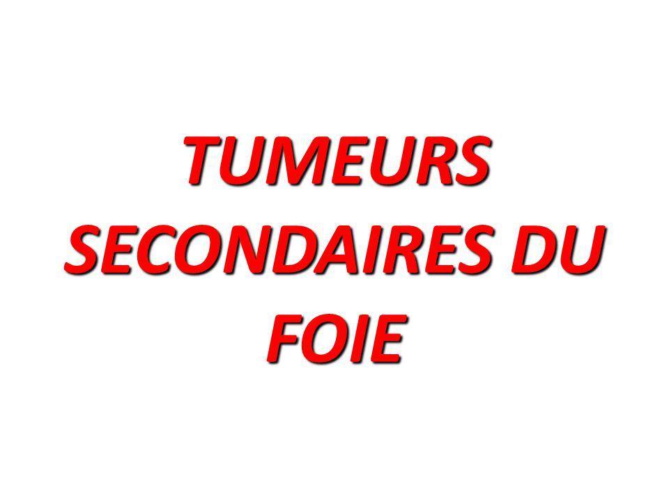 TUMEURS SECONDAIRES DU FOIE