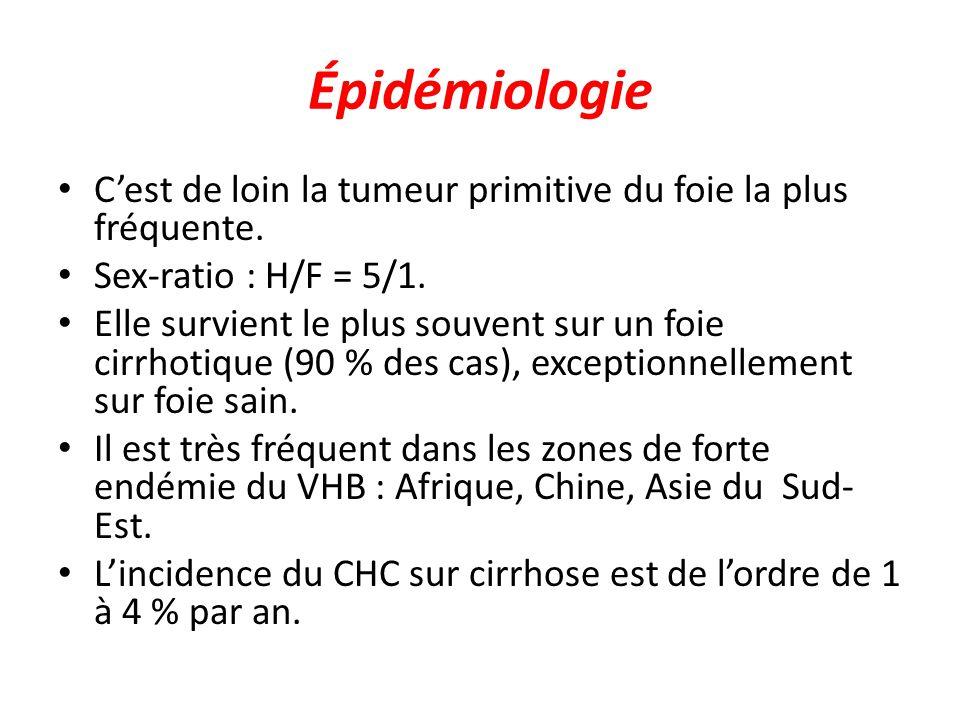 Épidémiologie C'est de loin la tumeur primitive du foie la plus fréquente. Sex-ratio : H/F = 5/1.