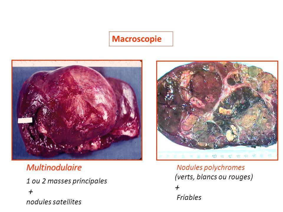 Macroscopie Multinodulaire + + Nodules polychromes