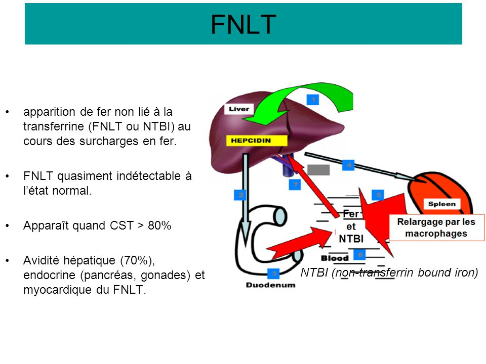 FNLT apparition de fer non lié à la transferrine (FNLT ou NTBI) au cours des surcharges en fer. FNLT quasiment indétectable à l'état normal.