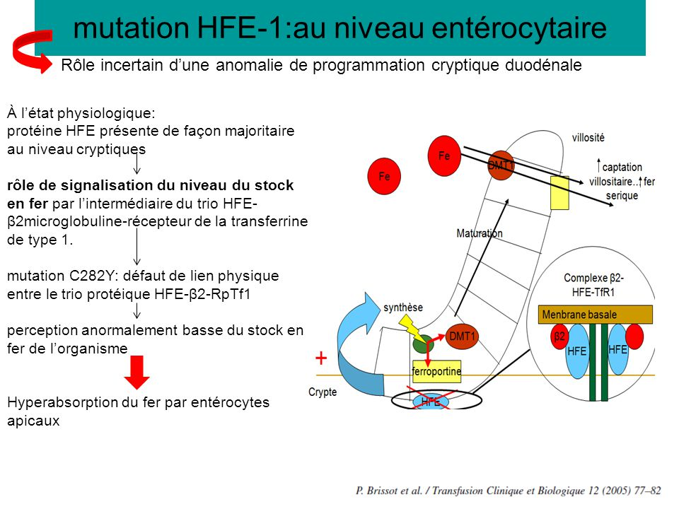 mutation HFE-1:au niveau entérocytaire