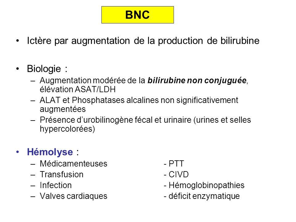 BNC Ictère par augmentation de la production de bilirubine Biologie :