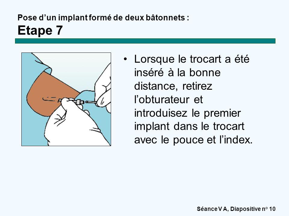 Pose d'un implant formé de deux bâtonnets : Etape 7