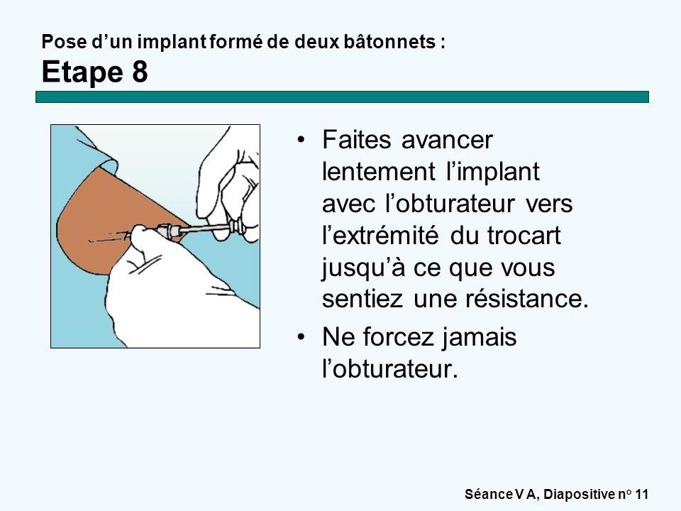 Pose d'un implant formé de deux bâtonnets : Etape 8