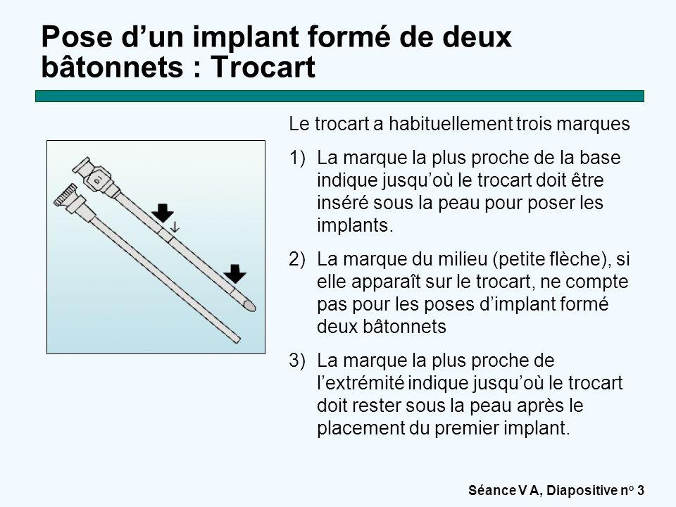 Pose d'un implant formé de deux bâtonnets : Trocart