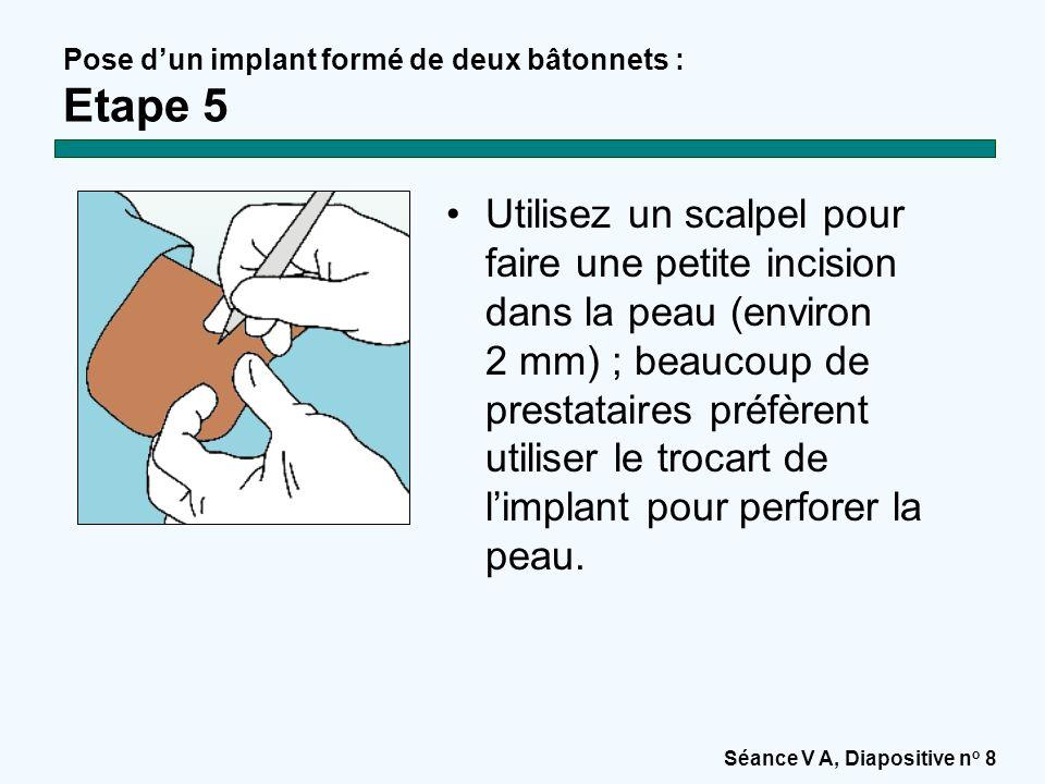 Pose d'un implant formé de deux bâtonnets : Etape 5