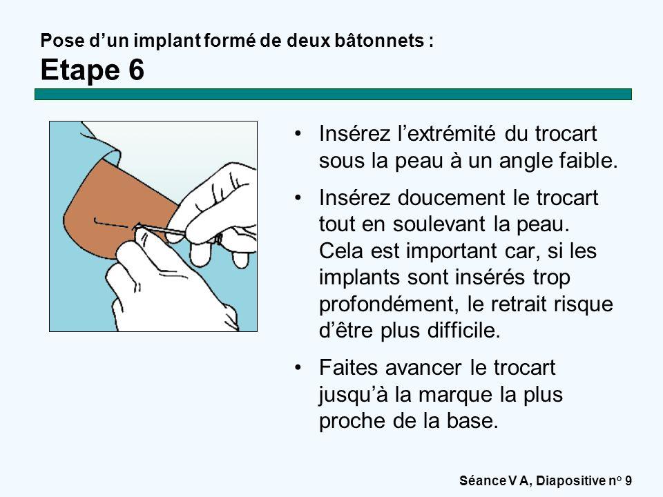 Pose d'un implant formé de deux bâtonnets : Etape 6