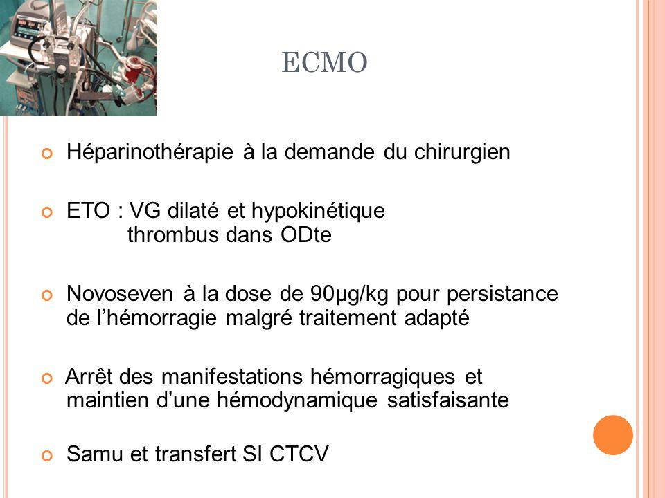 ECMO Héparinothérapie à la demande du chirurgien