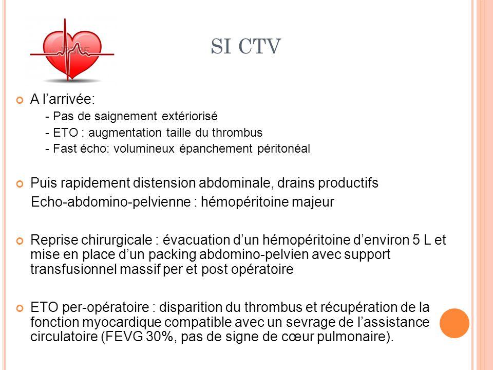 SI CTV A l'arrivée: - Pas de saignement extériorisé. - ETO : augmentation taille du thrombus. - Fast écho: volumineux épanchement péritonéal.
