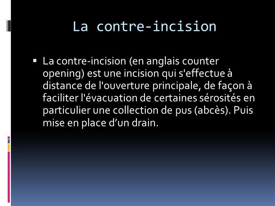 La contre-incision