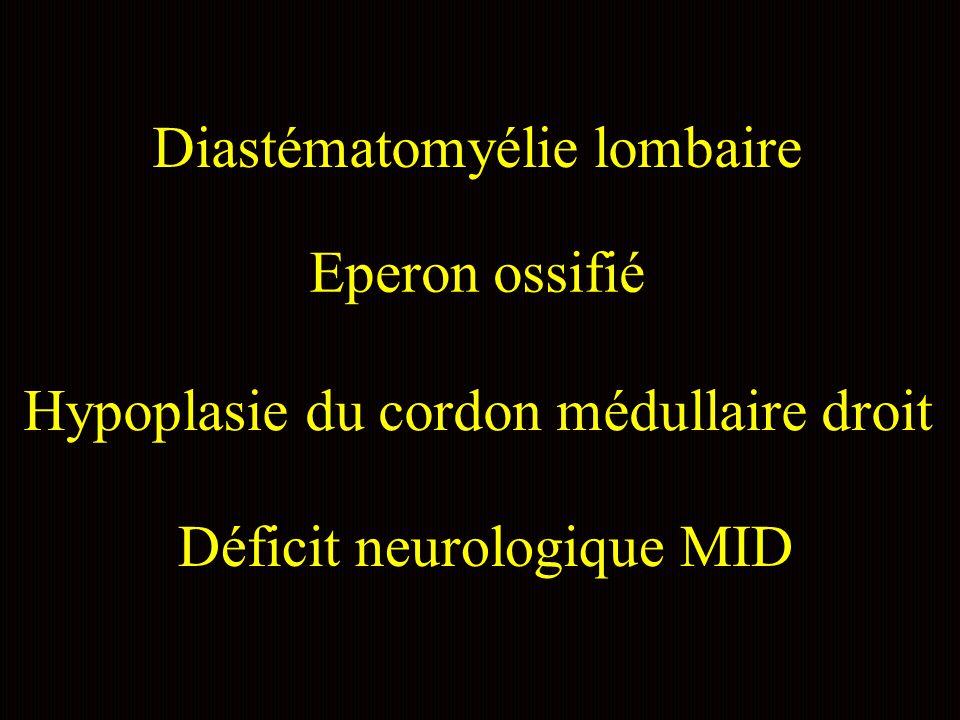 Diastématomyélie lombaire