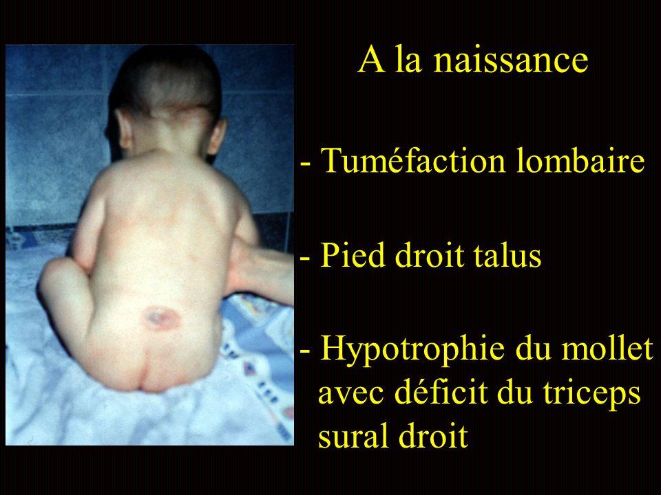 A la naissance - Tuméfaction lombaire - Pied droit talus