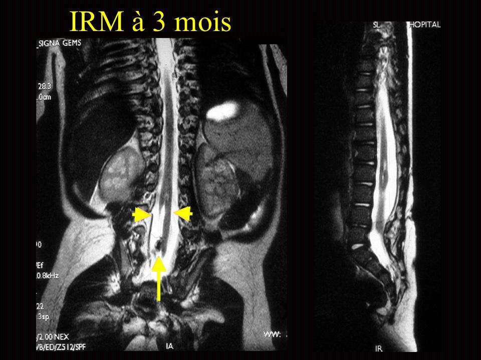 IRM à 3 mois