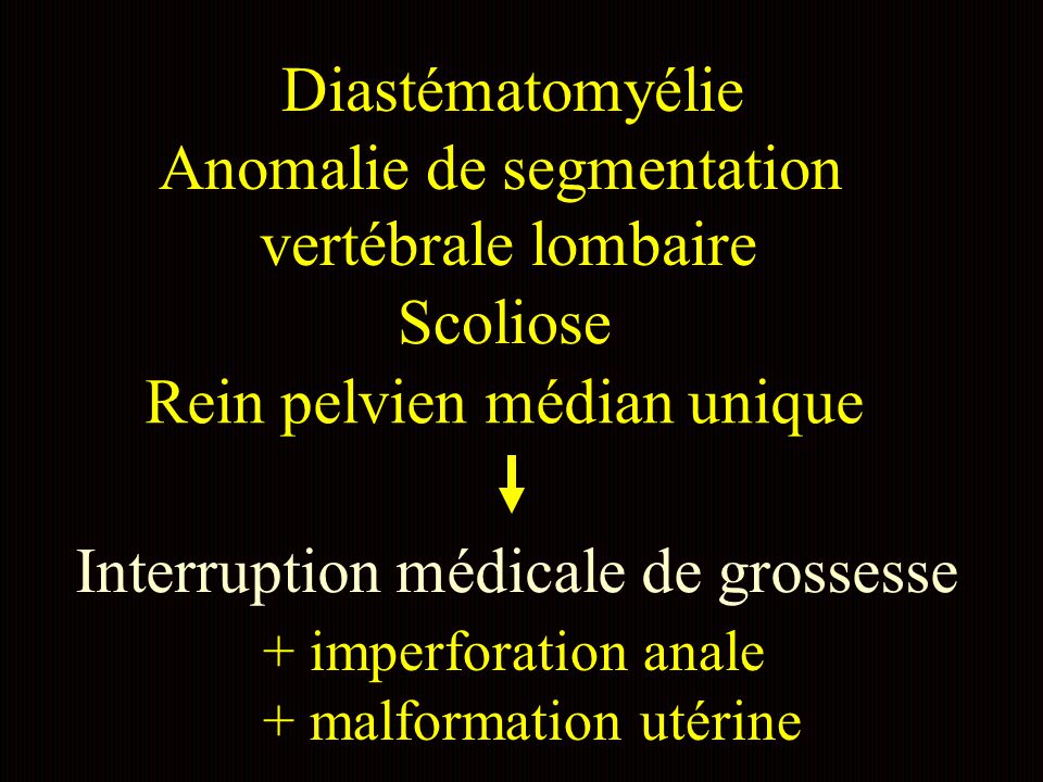 Anomalie de segmentation vertébrale lombaire