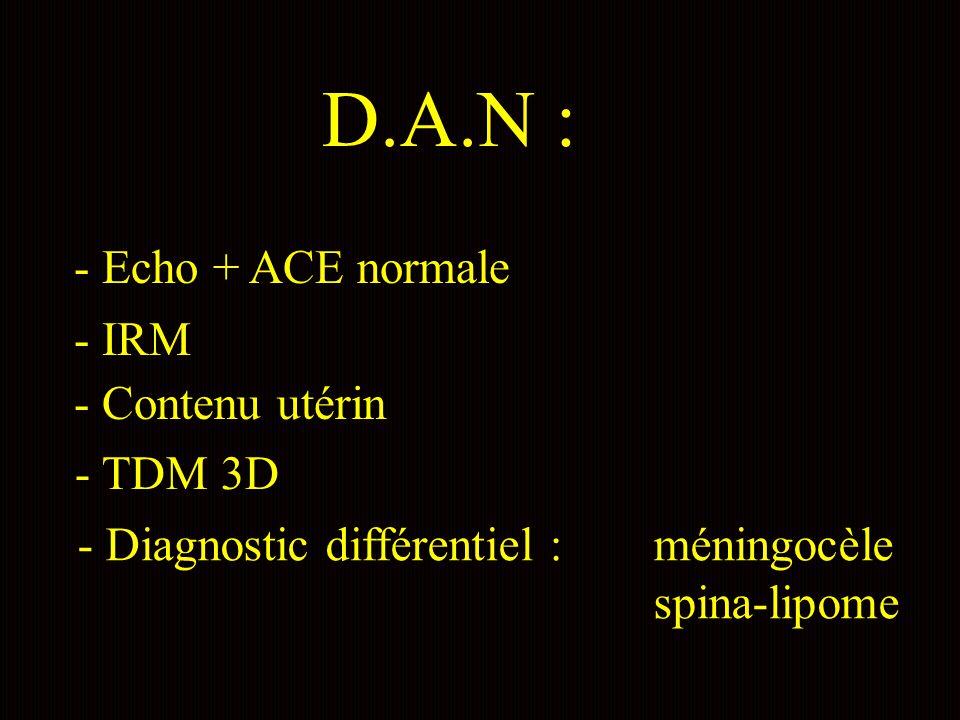 D.A.N : - Echo + ACE normale - IRM - Contenu utérin - TDM 3D