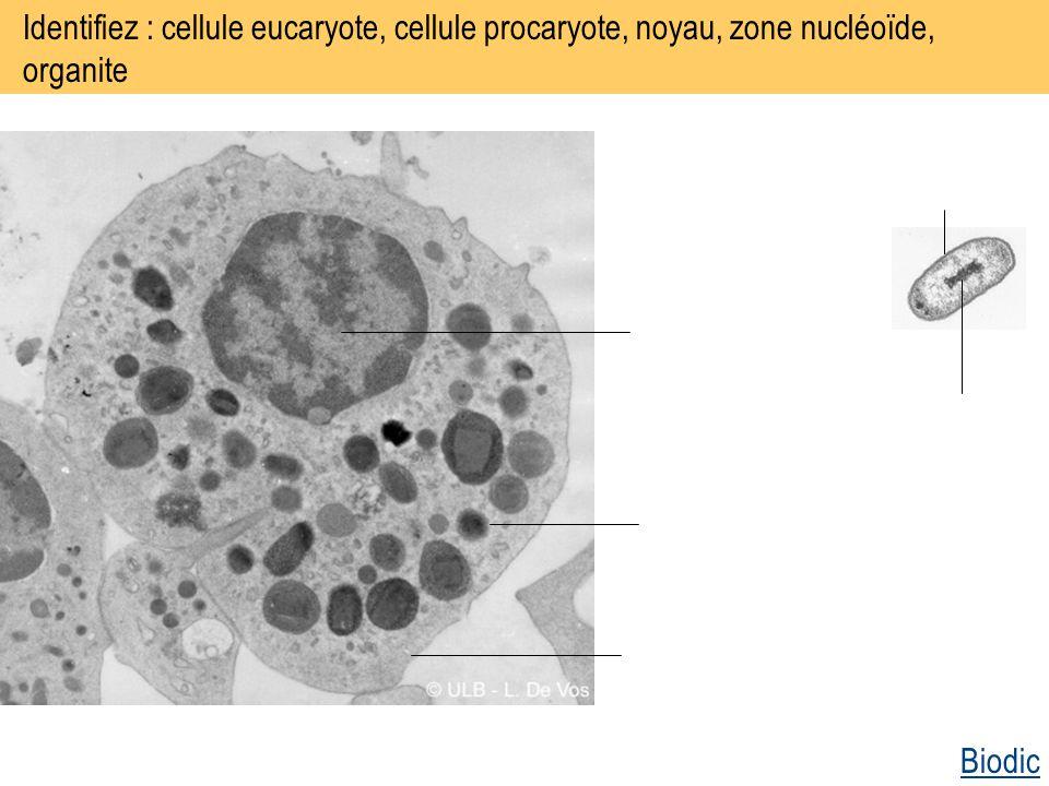 Identifiez : cellule eucaryote, cellule procaryote, noyau, zone nucléoïde, organite