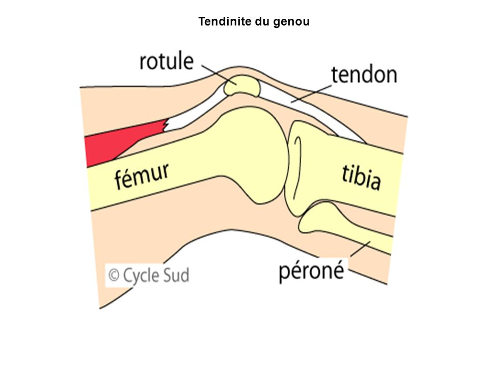 Tendinite du genou