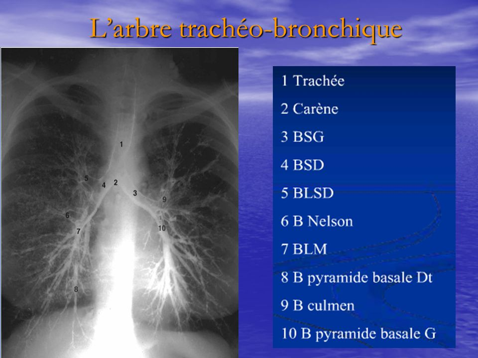 L'arbre trachéo-bronchique