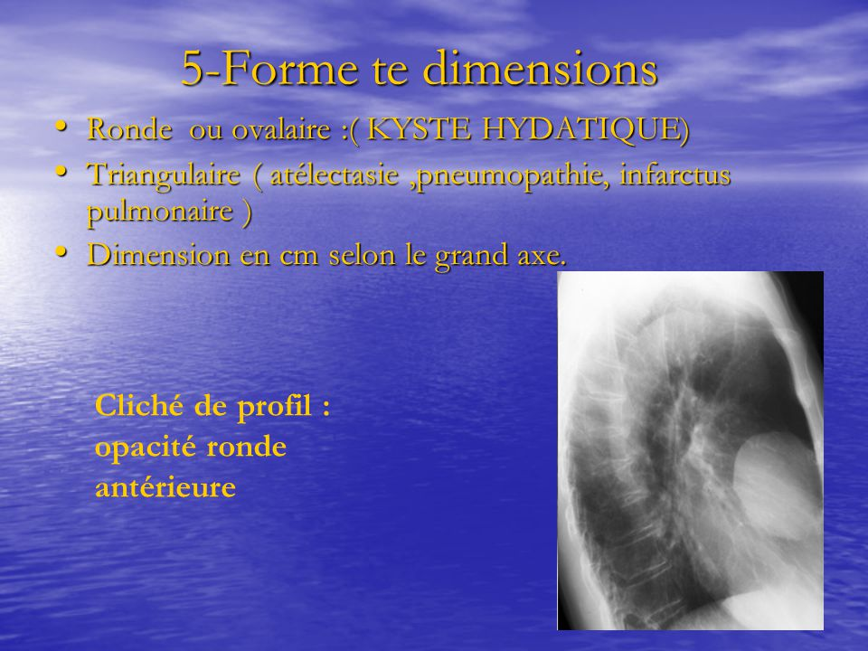 5-Forme te dimensions Ronde ou ovalaire :( KYSTE HYDATIQUE)