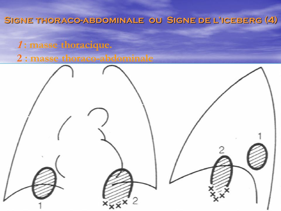 1 : masse thoracique. 2 : masse thoraco-abdominale