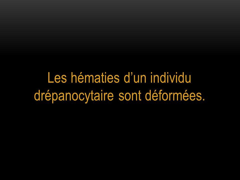 Les hématies d'un individu drépanocytaire sont déformées.