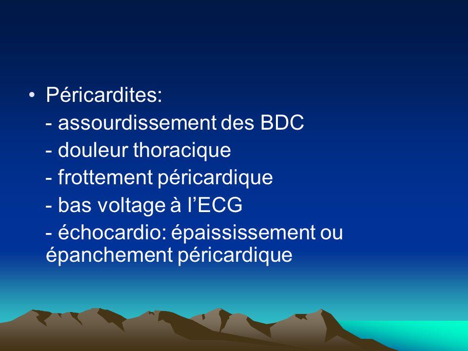 Péricardites: - assourdissement des BDC. - douleur thoracique. - frottement péricardique. - bas voltage à l'ECG.