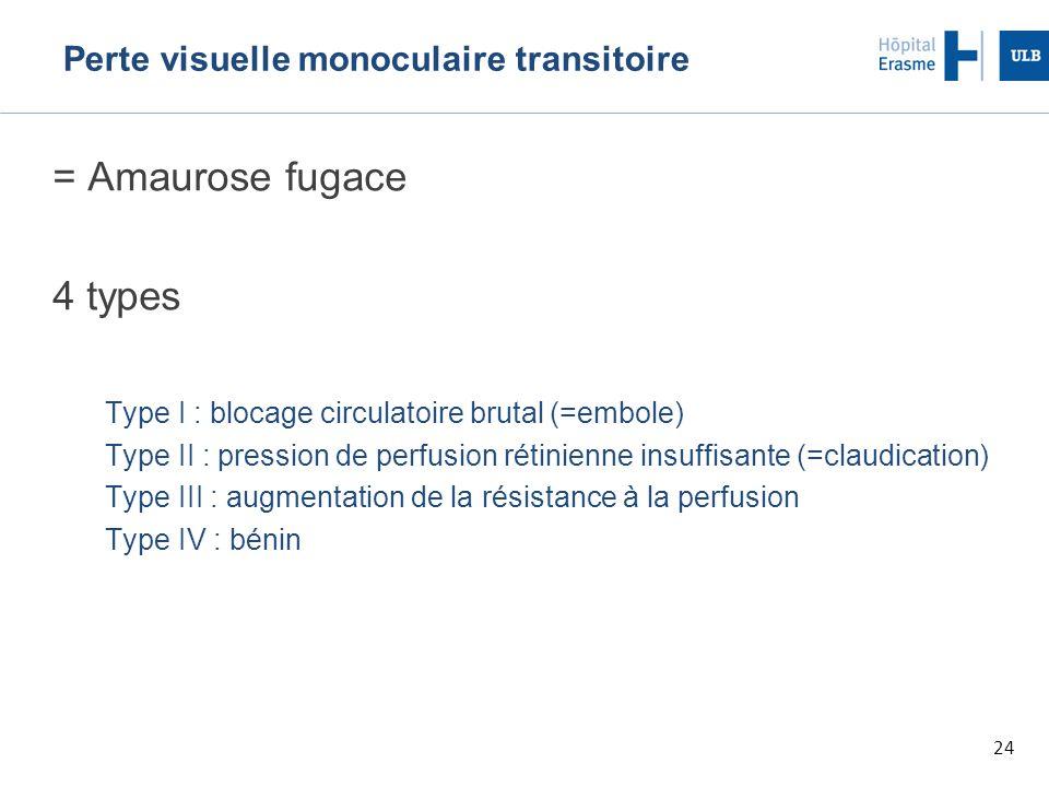 Perte visuelle monoculaire transitoire