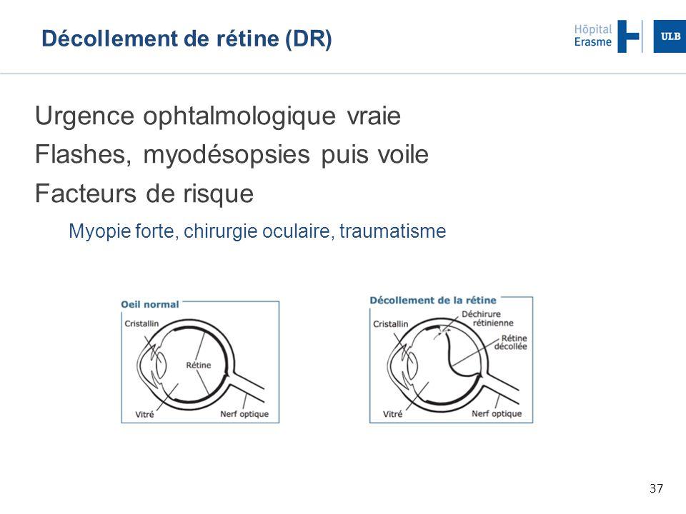 Décollement de rétine (DR)