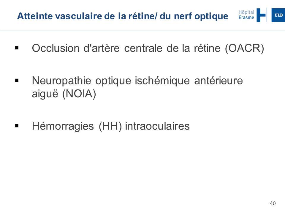 Atteinte vasculaire de la rétine/ du nerf optique