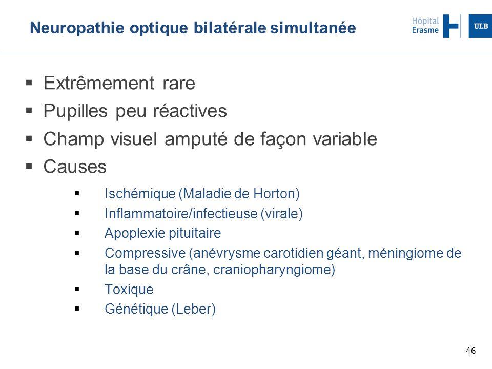 Neuropathie optique bilatérale simultanée