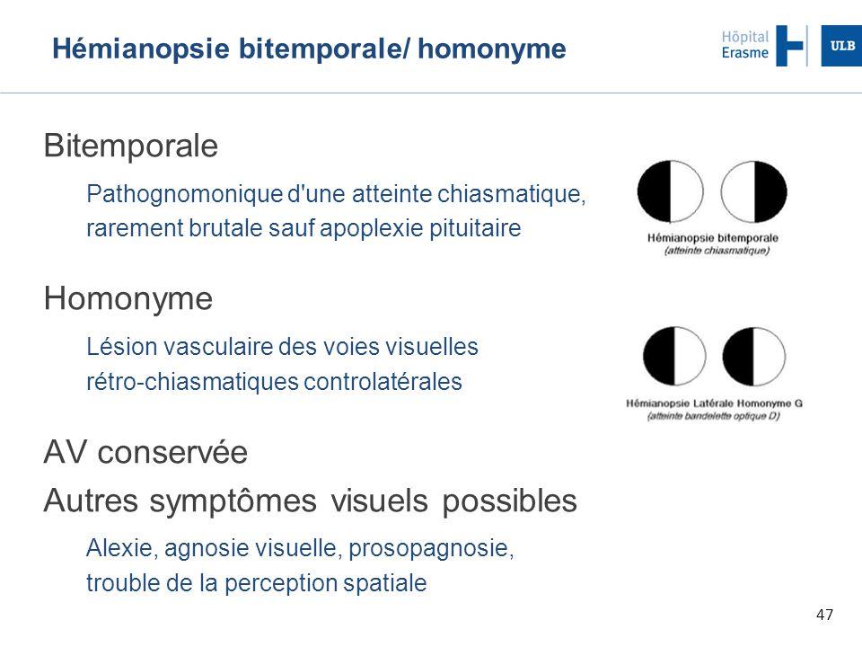 Hémianopsie bitemporale/ homonyme