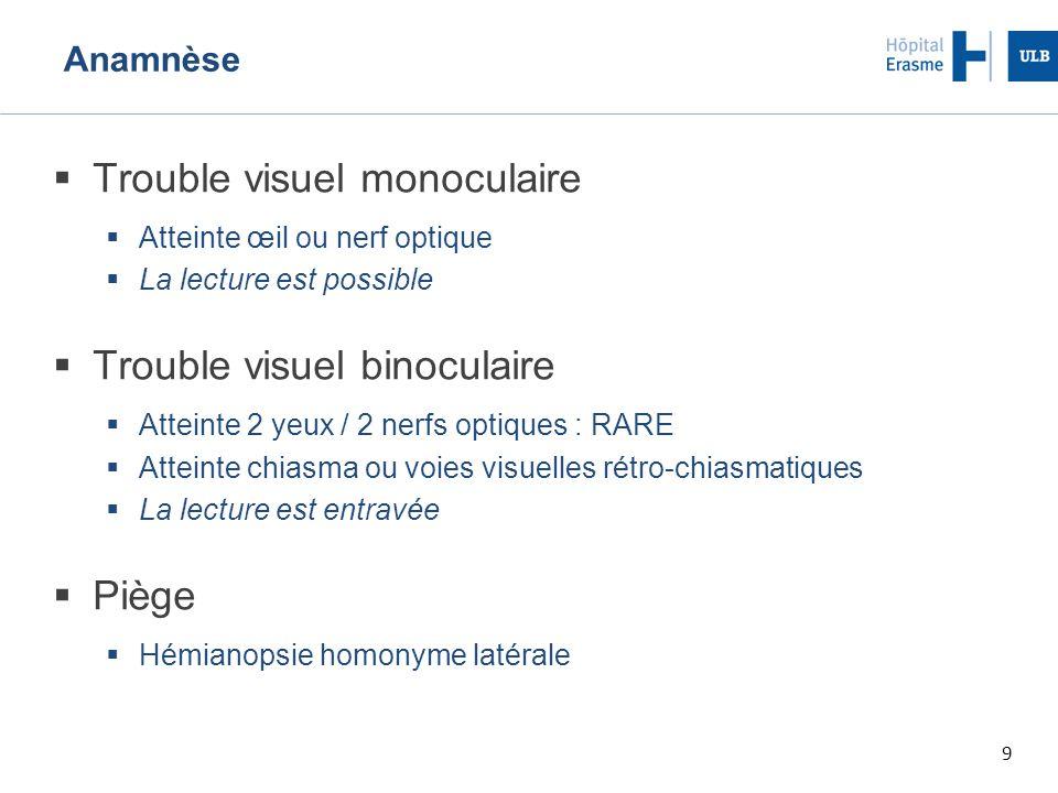 Trouble visuel monoculaire