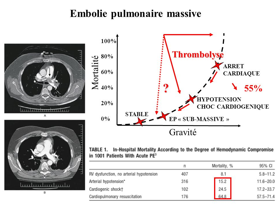 Embolie pulmonaire massive Thrombolyse Mortalité 55% Gravité 100%