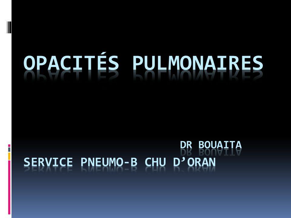Opacités pulmonaires dr BOUAITA SERVICE PNEUMO-b chu d'oran