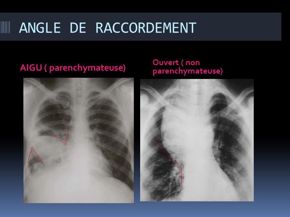 ANGLE DE RACCORDEMENT AIGU ( parenchymateuse)