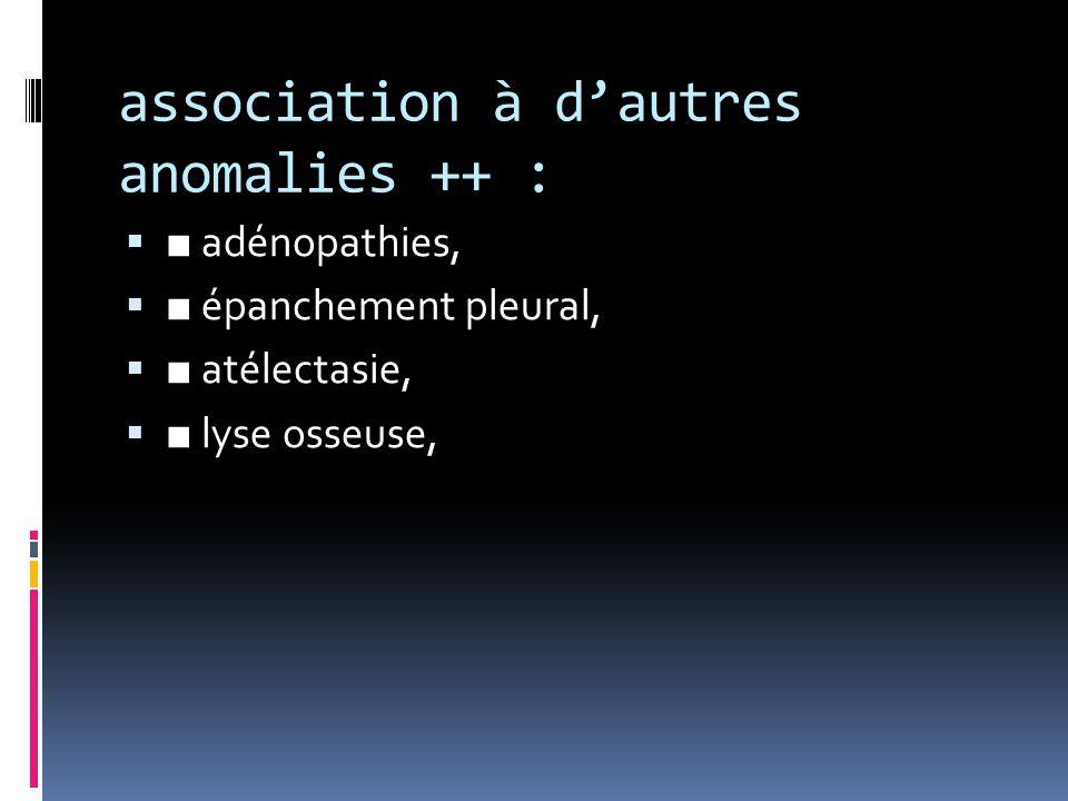 association à d'autres anomalies ++ :