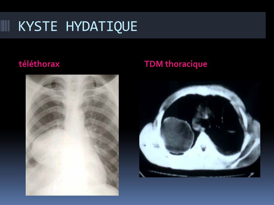 KYSTE HYDATIQUE téléthorax TDM thoracique