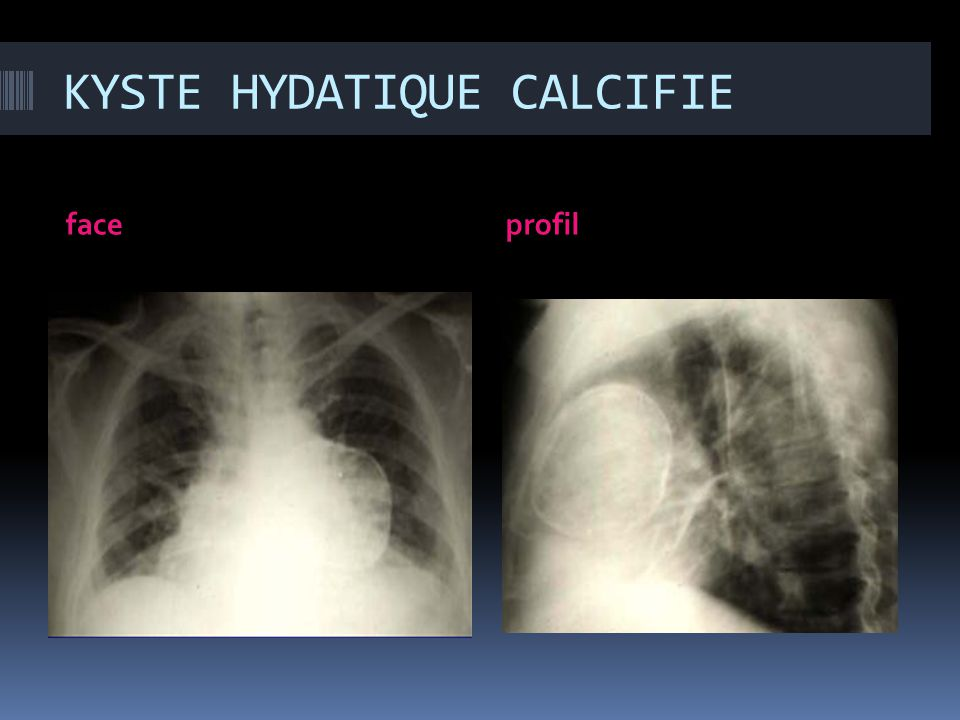 KYSTE HYDATIQUE CALCIFIE