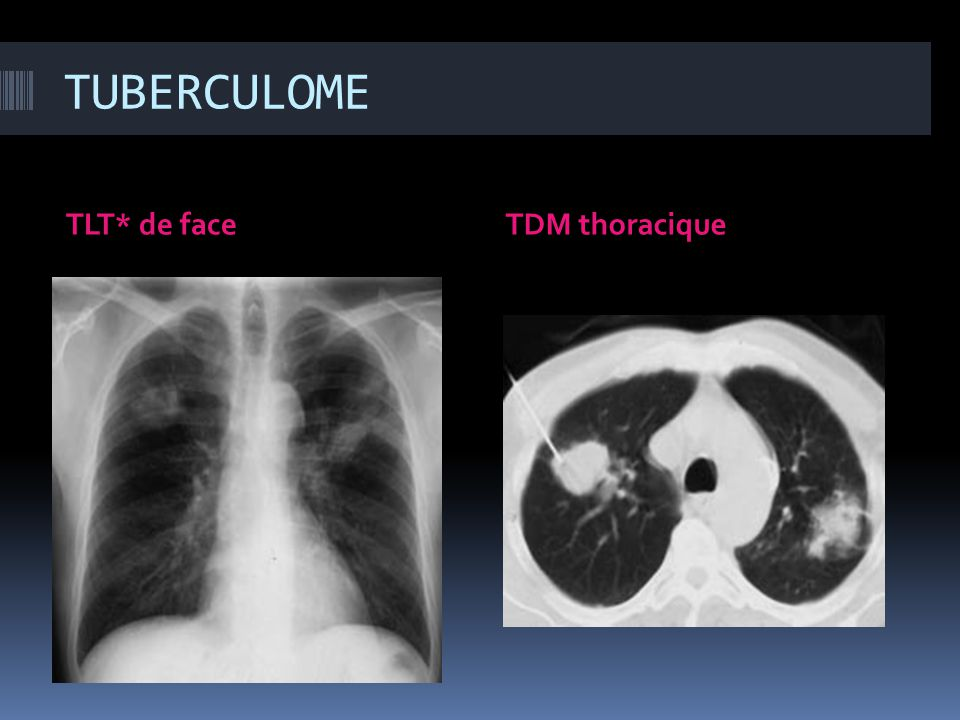 TUBERCULOME TLT* de face TDM thoracique