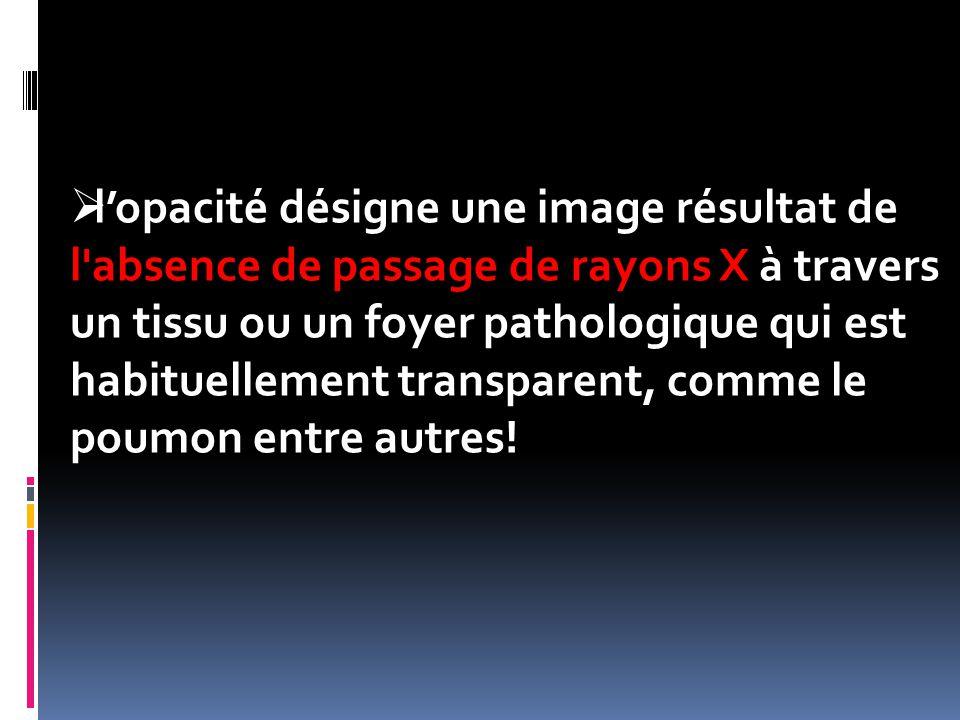l'opacité désigne une image résultat de l absence de passage de rayons X à travers un tissu ou un foyer pathologique qui est habituellement transparent, comme le poumon entre autres!
