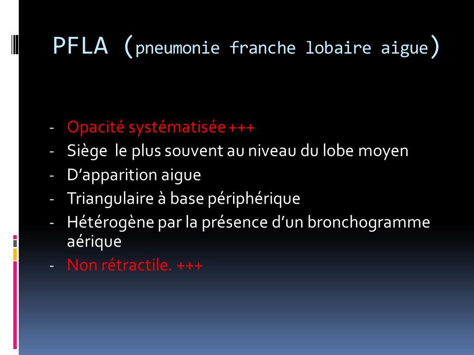 PFLA (pneumonie franche lobaire aigue)