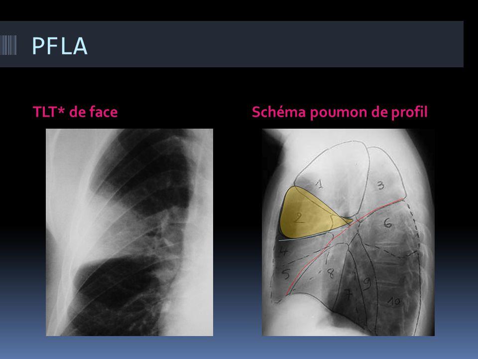 PFLA TLT* de face Schéma poumon de profil