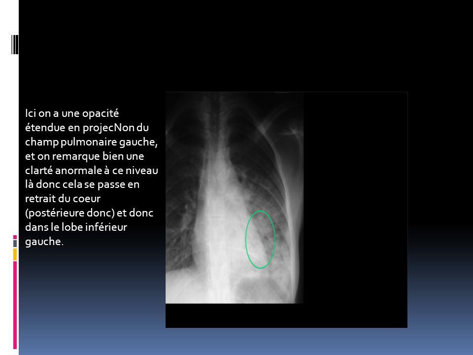 Ici on a une opacité étendue en projecNon du. champ pulmonaire gauche, et on remarque bien une. clarté anormale à ce niveau.