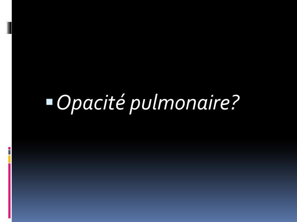 Opacité pulmonaire