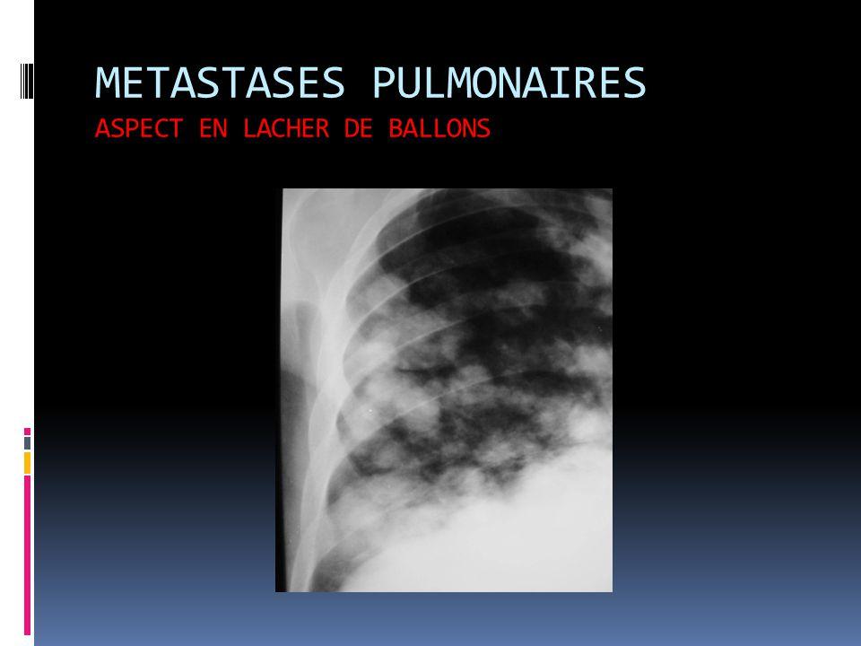 METASTASES PULMONAIRES ASPECT EN LACHER DE BALLONS